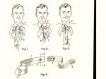 5 галстучных изобретений, которые не прижились